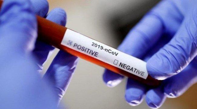 CHP'li vekilin testi pozitif çıktı