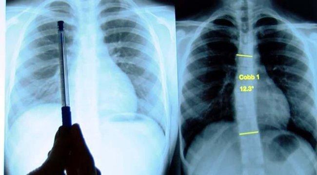Skolyoz tedavi edilmezse kalp ve solunum yetmezliğine yol açıyor